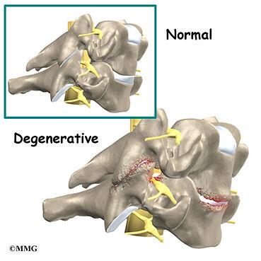 Burd PT Degenerative facet joints