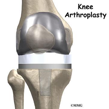 Burd PT Knee Arthroplasty