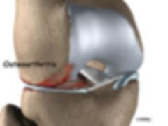 Burd PT Knee Meniscal Injury Causes