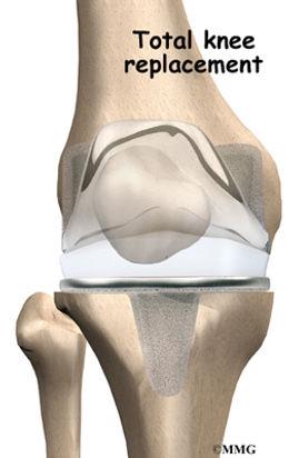 Burd PT Total Knee Replacement