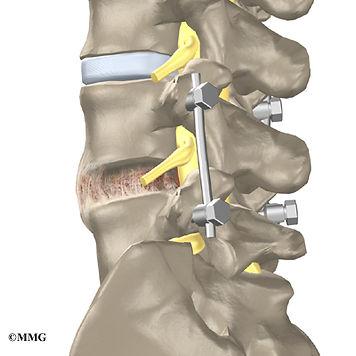 lumbar_stenosis_surgery03.jpg