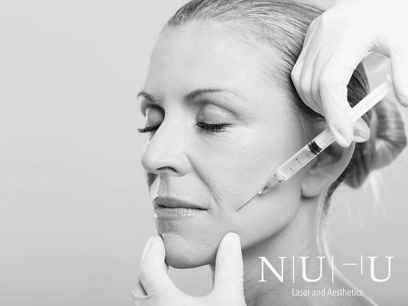 Image of a woman getting botox treatments - skin treatments - NU-U Laser and Aesthetics Clinic in Hebden Bridge, West Yorkshire Todmorden Hebden Bridge Halifax Leeds Manchester