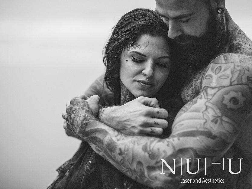 Image couple with tattoos hugging - cryolioplysis - NU-U Laser and Aesthetics Clinic in Hebden Bridge, West Yorkshire Todmorden Hebden Bridge Halifax Leeds Manchester
