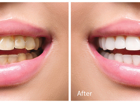 AIRFLOW POLISHER