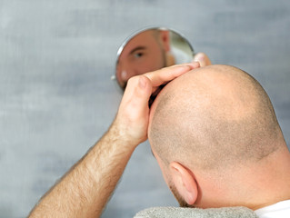 10 Other Reasons Why You're Suffering With Hair Loss