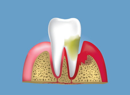 TIPS TO AVOID GUM DISEASE