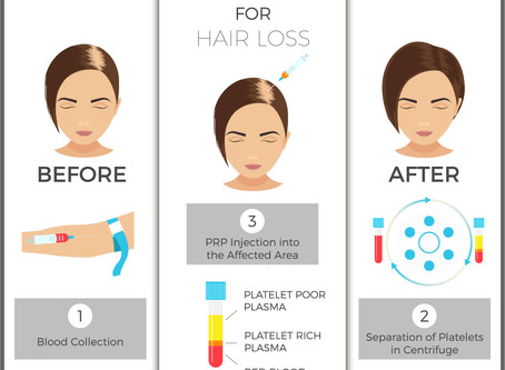 PLATELET RICH PLASMA (PRP) FOR HAIR LOSS