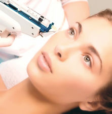 Mesotherapy, beauty, sligo, ireland, dublin