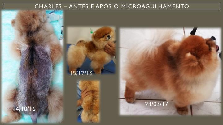 Microagulhamento Alopecia X