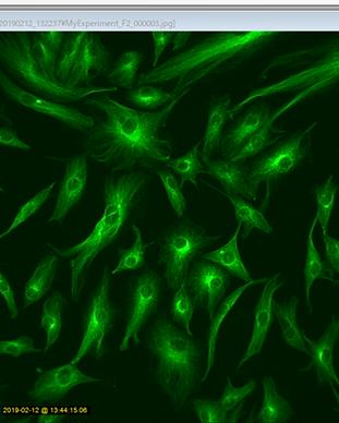 蛍光顕微鏡による画像撮影
