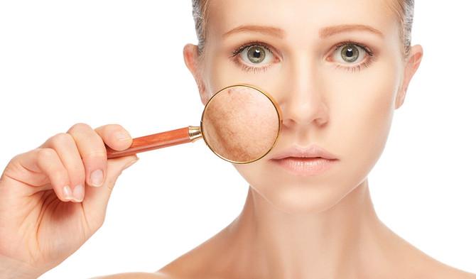 Tres productos para prevenir y eliminar las manchas en la piel