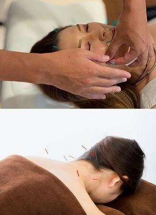 美容鍼+全身鍼灸.jpg