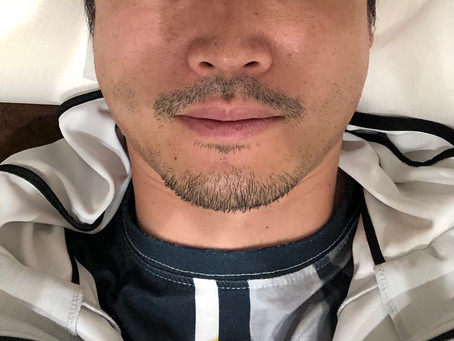 美容鍼体験(男性)