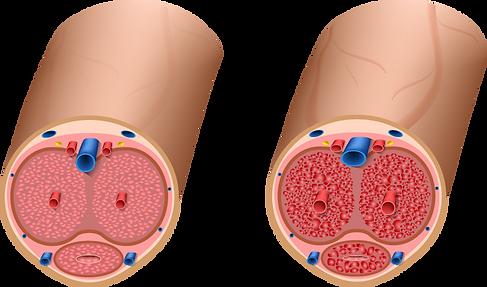 Nitric oxide and erectile dysfunction (ED)