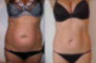 Before and after of Lipo Cavitation