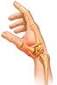 rhizarthrose douleur du pouce arthrose du pouce gonflement du pouce