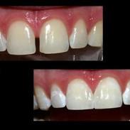 Dental Bonding with composite