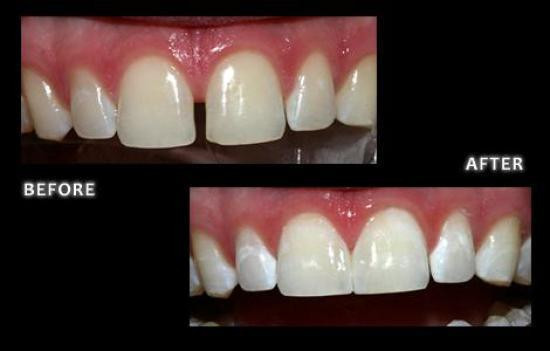 Dental Bonding with composite