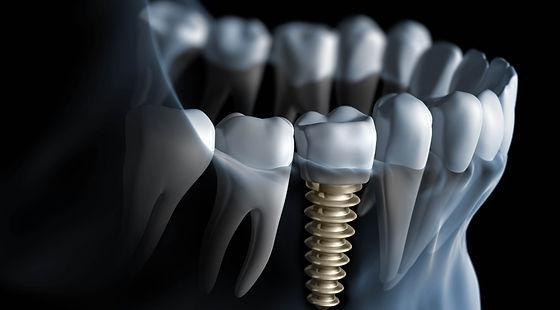 Implants Fort Lee Dental Group