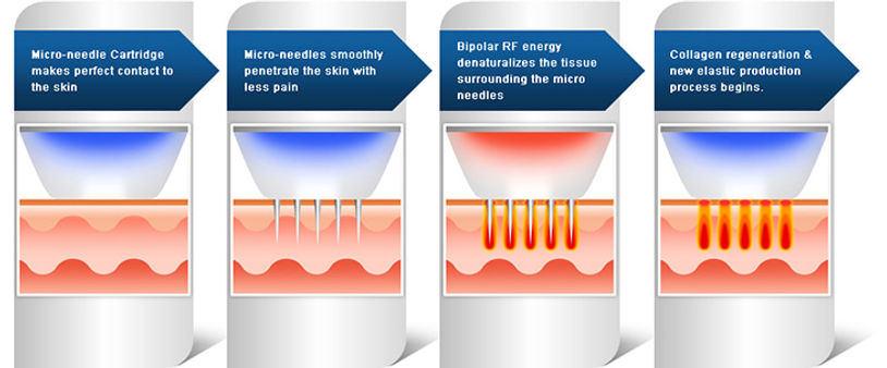 Micro-Needling | Skin Resurfacing | Kentucky Med Spa | KY
