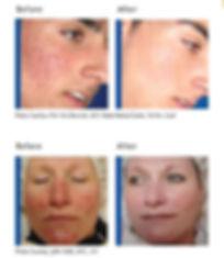 Smooth Skin | Acne Treatments | Kentucky Med Spa | Lexington, KY