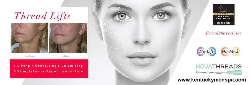 Thread Lifts | Advanced Skin & Vein Care Centers | KY
