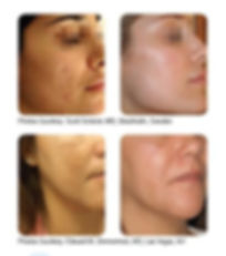 Acne Laser Treatments | Healthy Skin | Advanced Skin & Vein Care Centers | KY