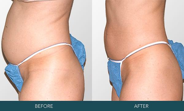 Alternative Liposuction | I-Lipo | Lexington, KY | Kentucky Med Spa