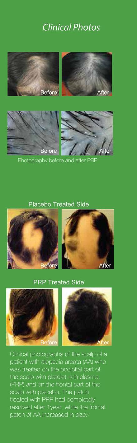 Hair Loss Treatment | Platelet Rich Plasma | Lexington, KY | Kentucky Med Spa