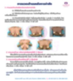 การนวดเต้านมหลังการผ่าตัดใช้.jpg