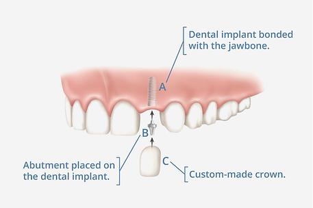 Implant_Basics_Diagram.png