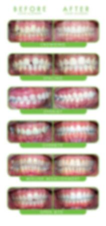 Large-Case-Types.jpg