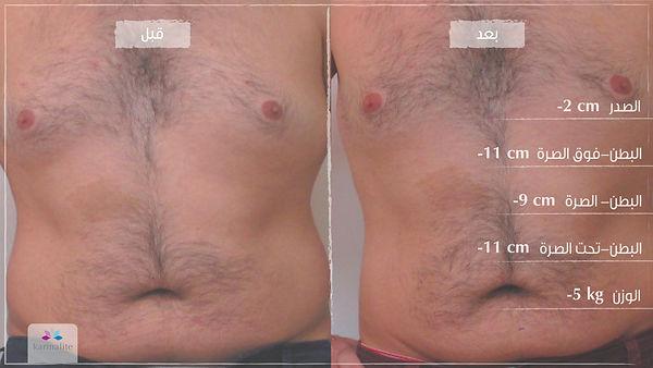 قبل وبعد - تشكيل الجسم-12.jpg
