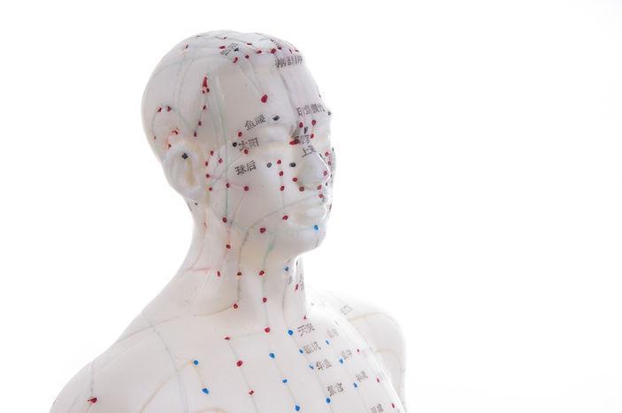 Heilpraktiker Frankfurt, TCM-Arzt, Akupunktur Frankfurt, Akupunktur Modell