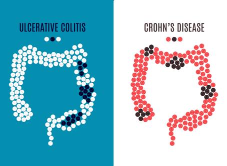 Der Unterschied zwischen Colitis ulcerosa und Morbus Crohn