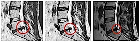 TCM und chinesische Kräutermedizin bei Bandscheibenvorfall Wirkungen auf MRT-Bild