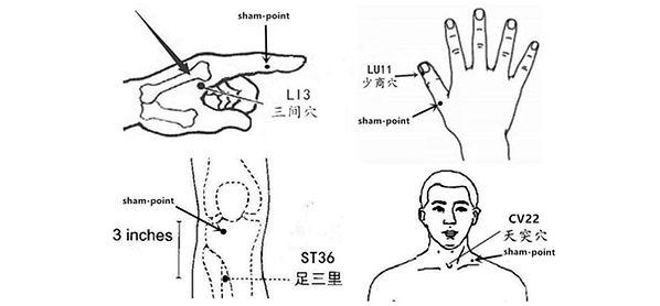 2. eine aussagekräftige Studie, die eine hohe Wirkung der Akupunktur auf das Globusgefühl