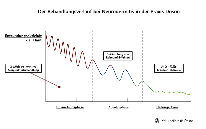 Der Behandlungsverlauf bei Neurodermitis