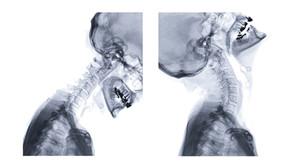 Akupunktur gegen einen Bandscheibenvorfall der Halswirbelsäule (HWS)