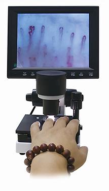 Каппилярный микроскоп
