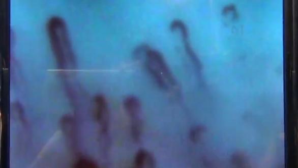 Мгновенное воздействие водородных ингаляций на каппилярное кровообращение