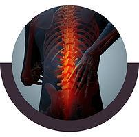 إصابات وكسور العمود الفقري .jpg