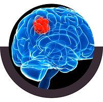 جراحة أورام الدماغ المجهرية .jpg