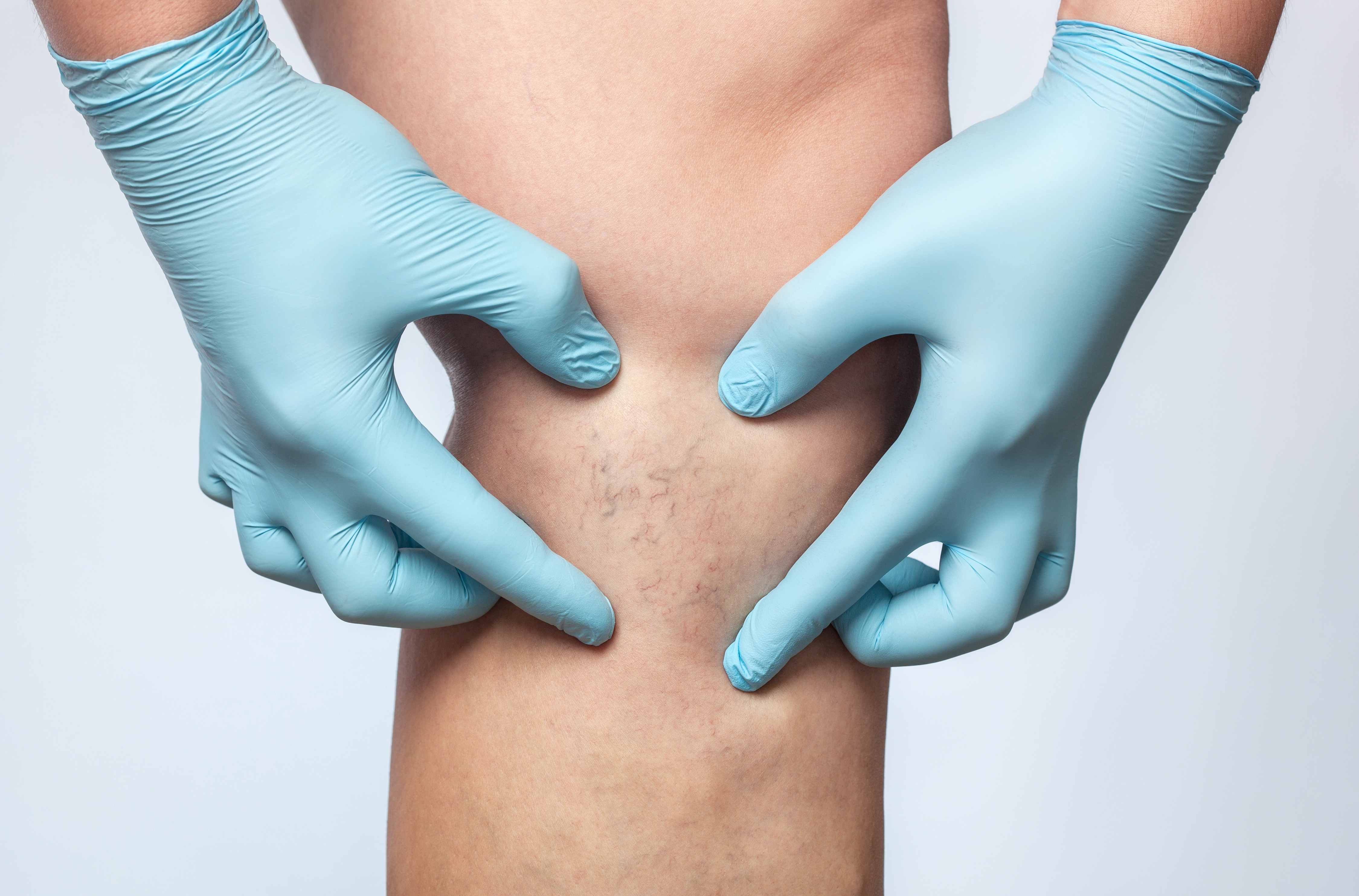 Spider Veins-Sclerotherapy