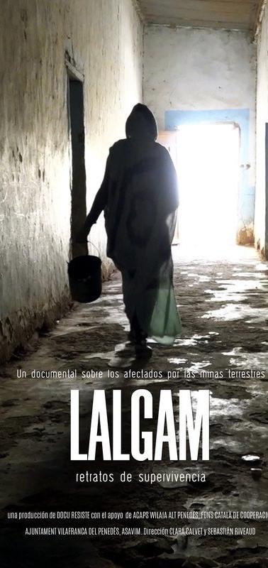 LALGAM