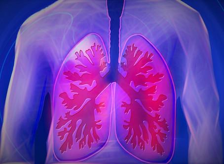 Glutation stoppade svåra andningsbesvär vid covid-19