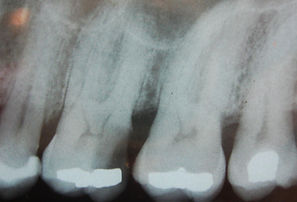 Dentist in Durham- Root Canal Treatment. Root Canal Treatment NHS, tooth extraction, Dentist in Durham