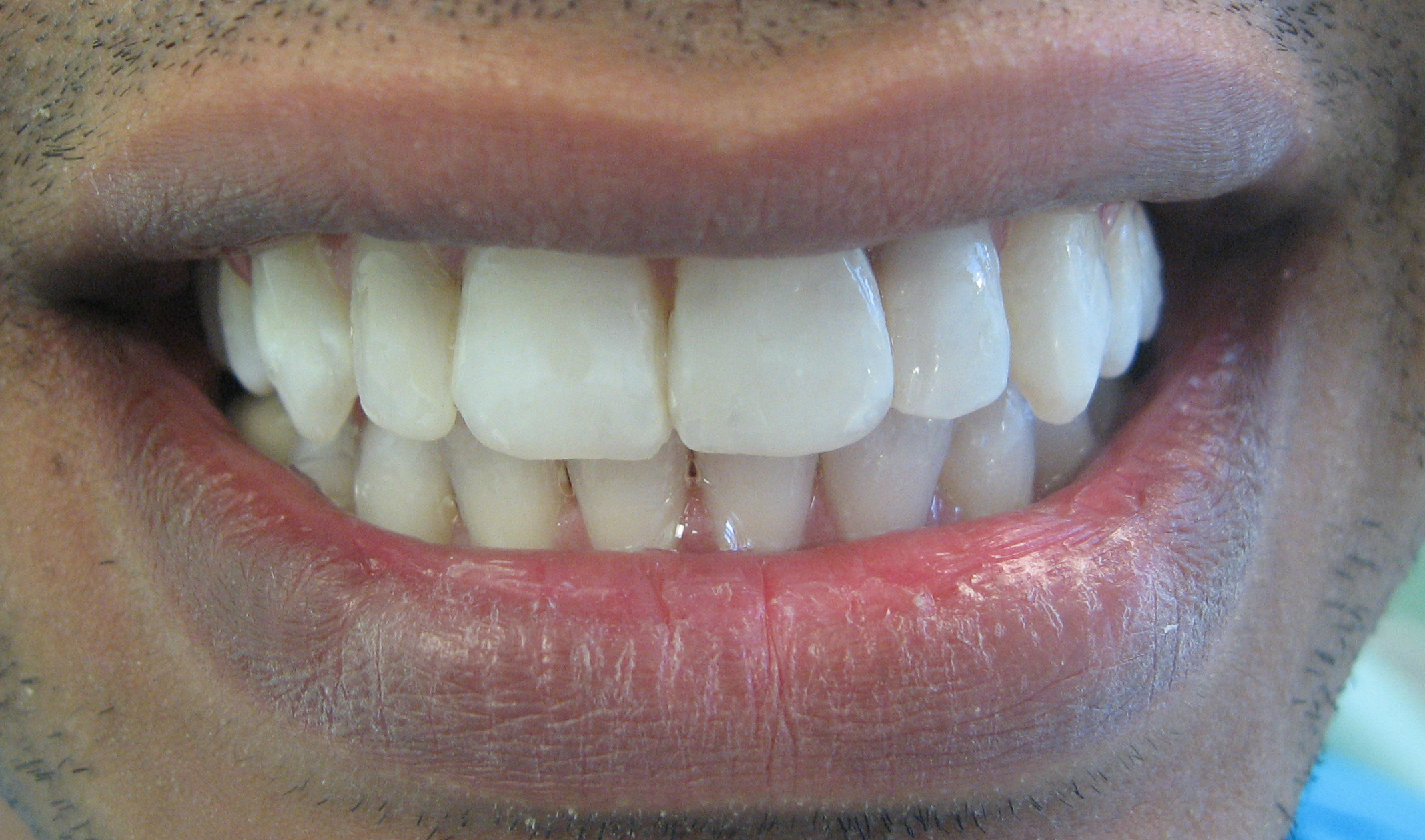 After Whitening and cosmetic bonding