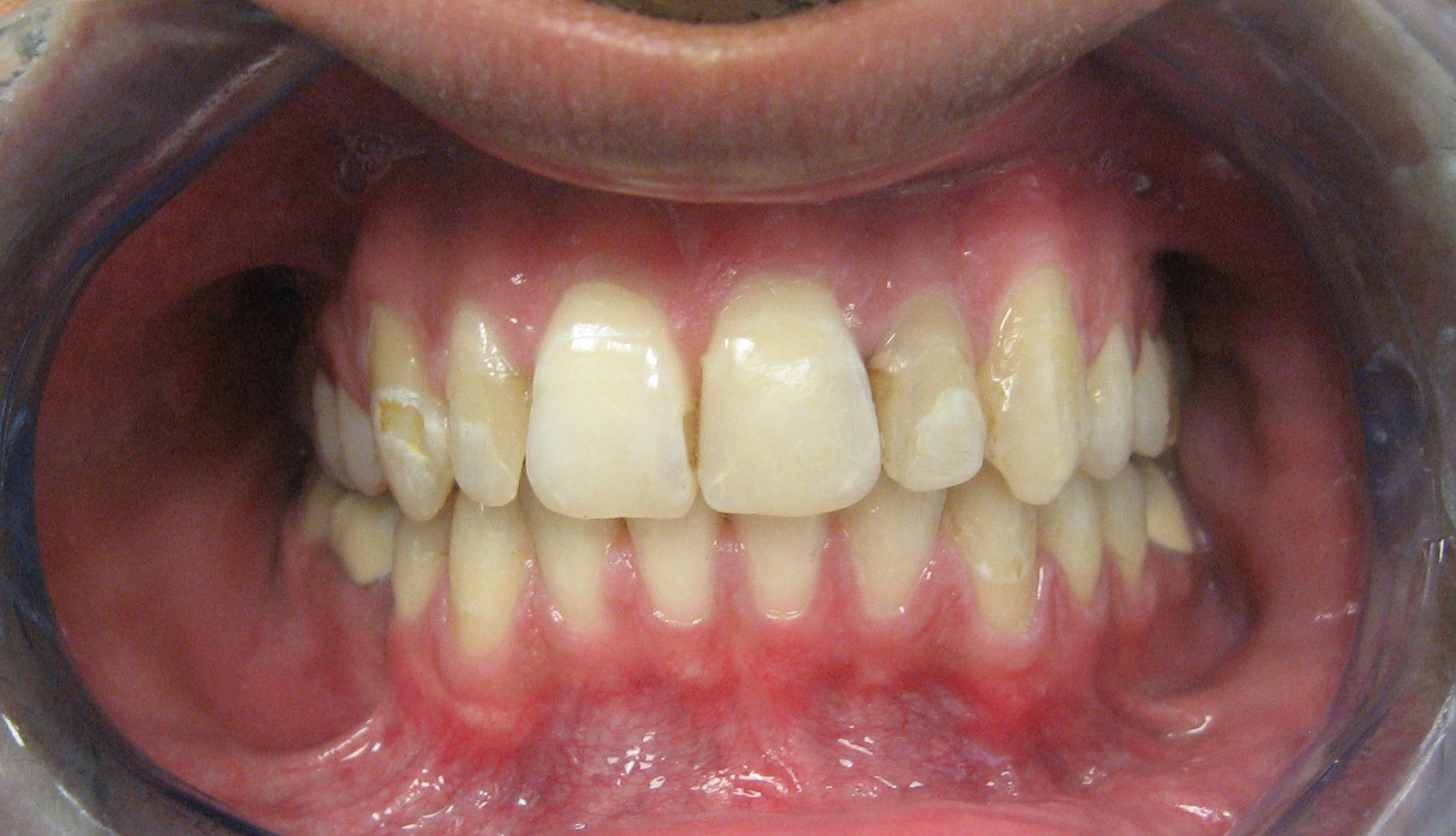 Before Whitening & cosmetic bonding