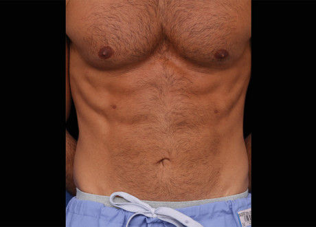 Emsculpt-Male-Abdomen-After-Lasky-Aesthe